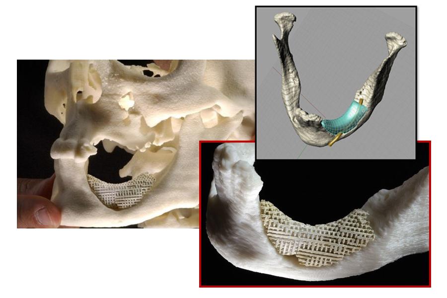 Mandible Implant