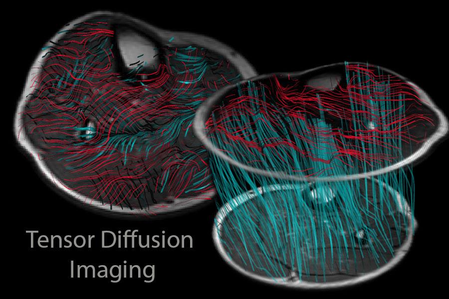 Tensor Diffusion Imaging