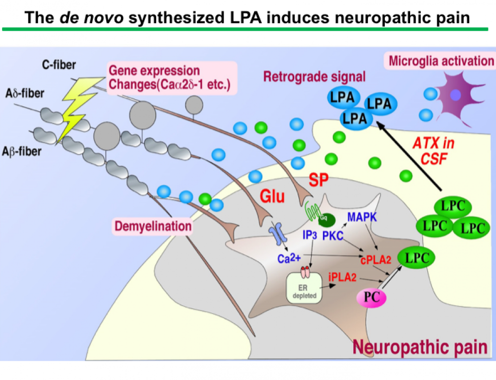 Identification of initiator for neuropathic pain