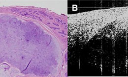 [comparison of tumor viewed by slide and by OCT]