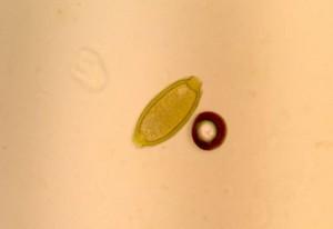 whipworm egg