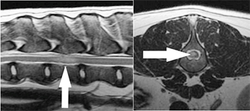 [mri images showing location of spinal stroke]