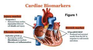 Cardiac Biomarker Diagram