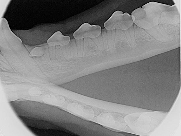 mandibular premolars