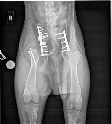 [radiograph (X-ray) of Spike's fractured pelvis after surgery]