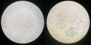 [cells before and after the virus is added]
